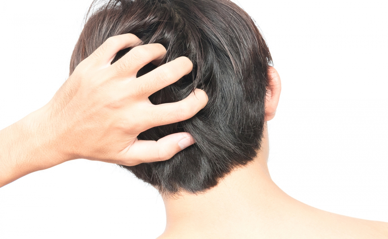 male itching after hair transplant