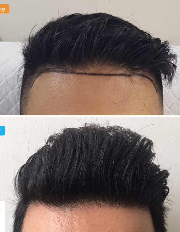 Frontal hairline transplant