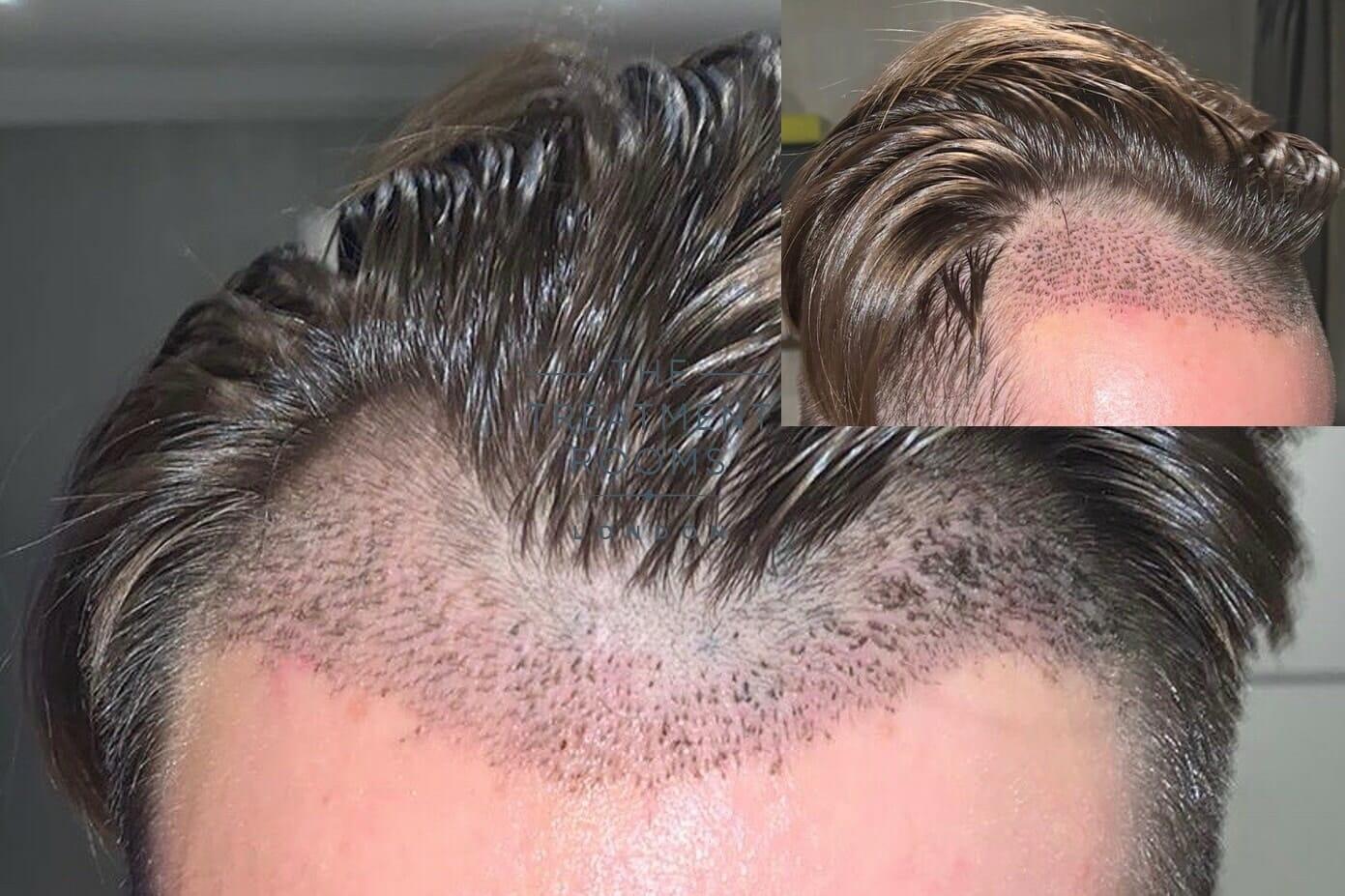 7 days post hair transplant