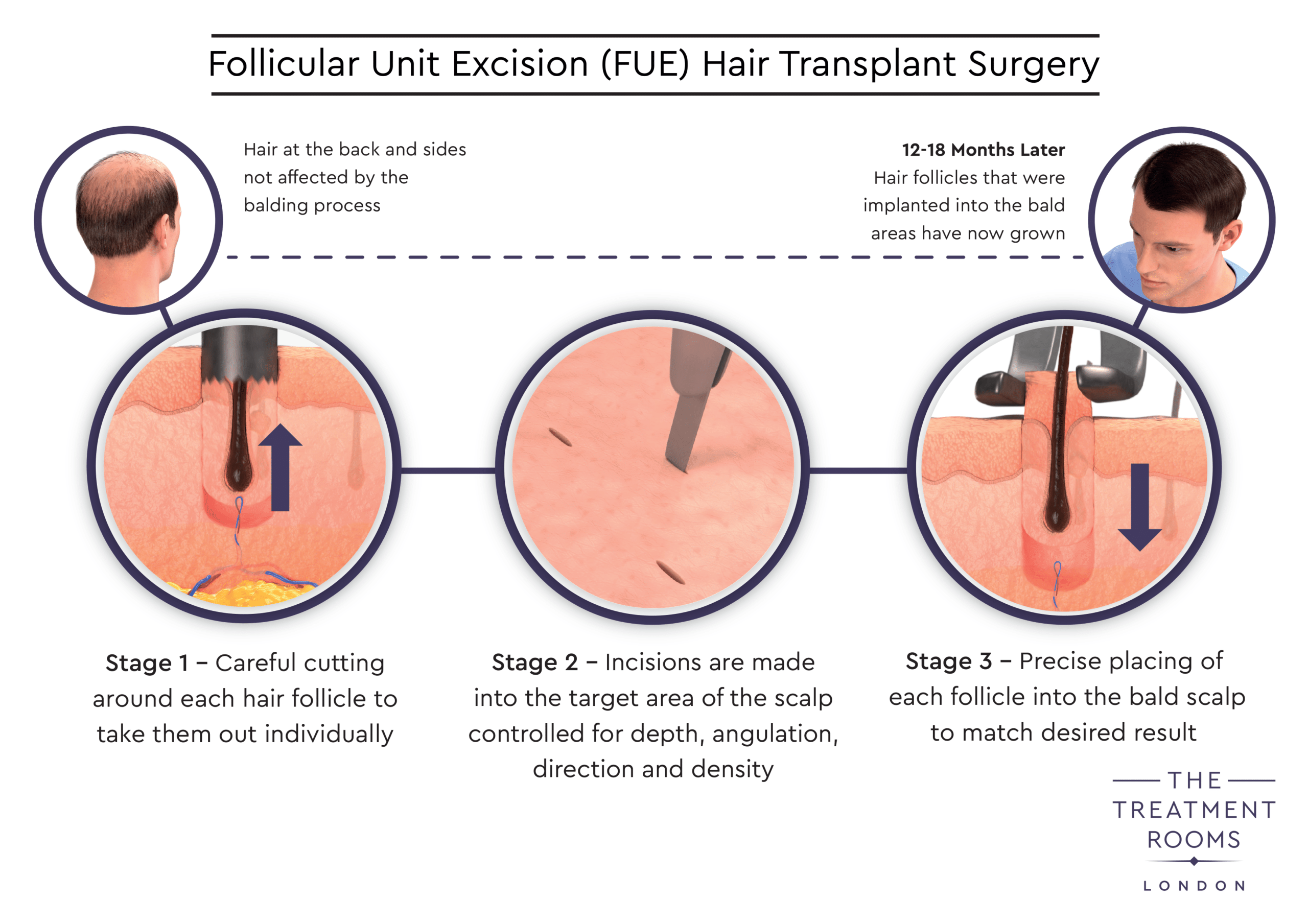 FUE Hair Transplant Surgery Diagram