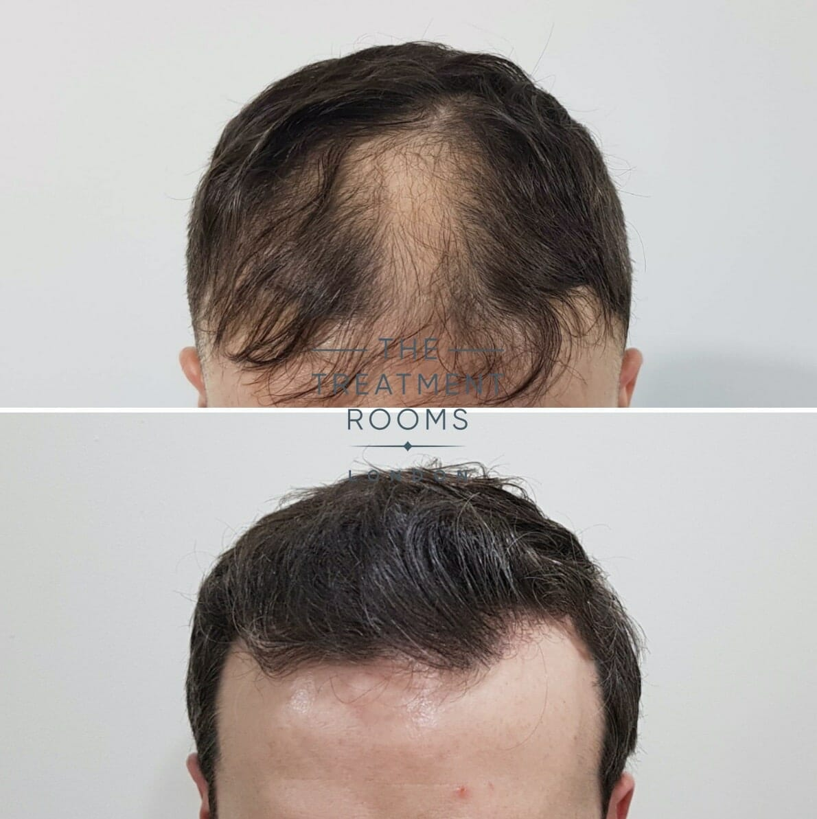 FUE hair transplant London result