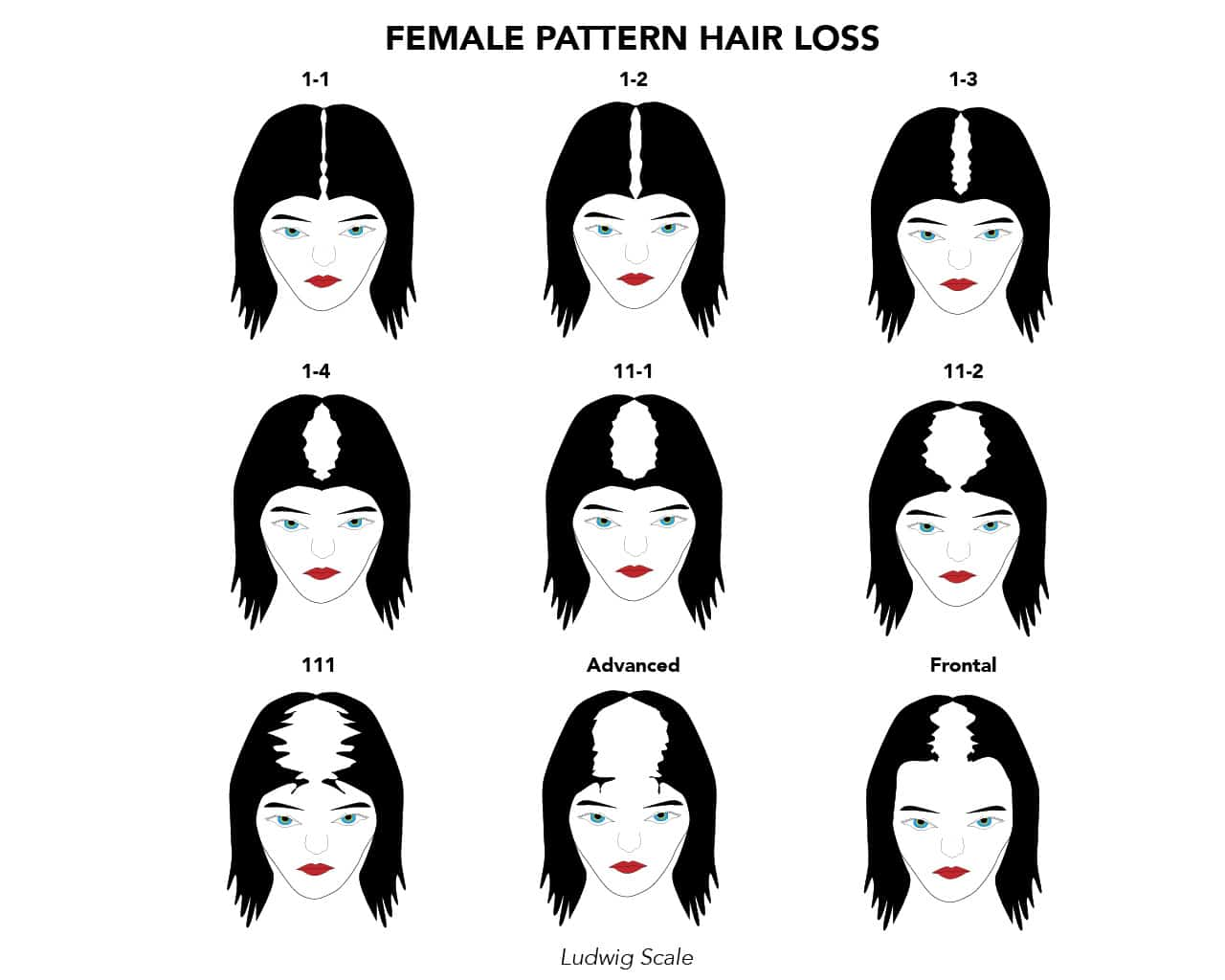 Female pattern hair loss ludwig scale