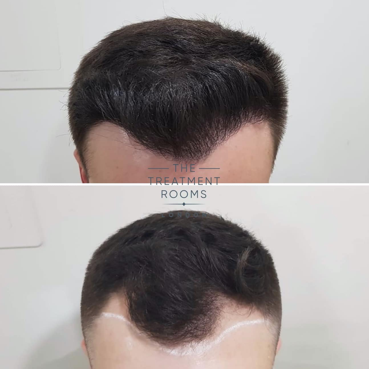 Frontal Hairline FUE hair transplant before and after