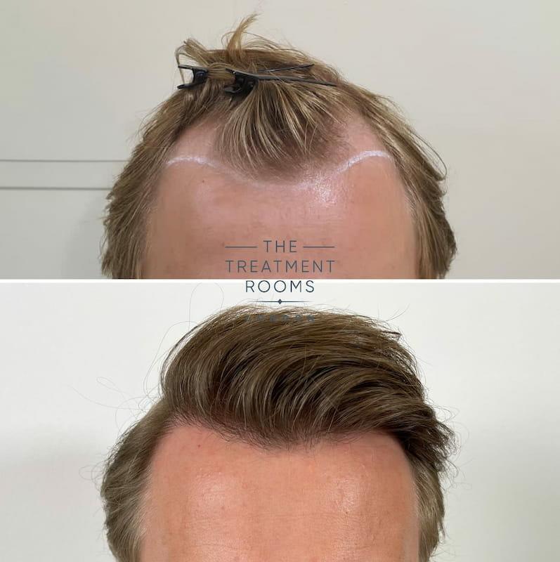 Hairline FUE hair transplant