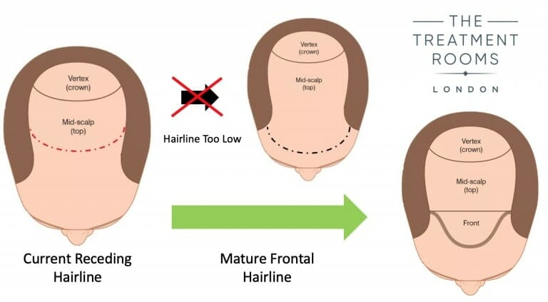 Hairline design for mature hairline hair transplant