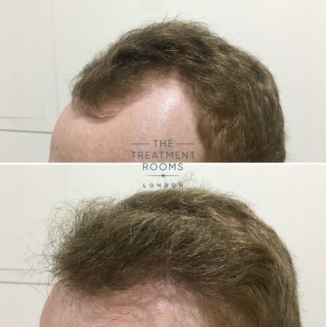 Minoxidil Hair Transplant
