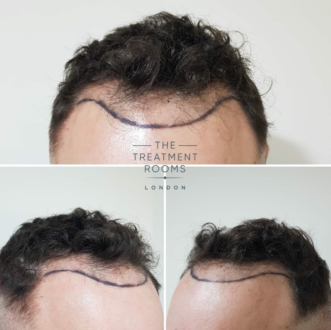 Norwood 3 hair loss before hair transplant