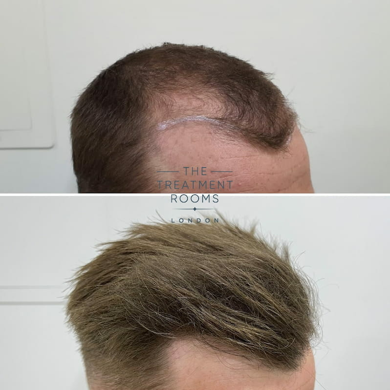 Right hairline FUE hair transplant result