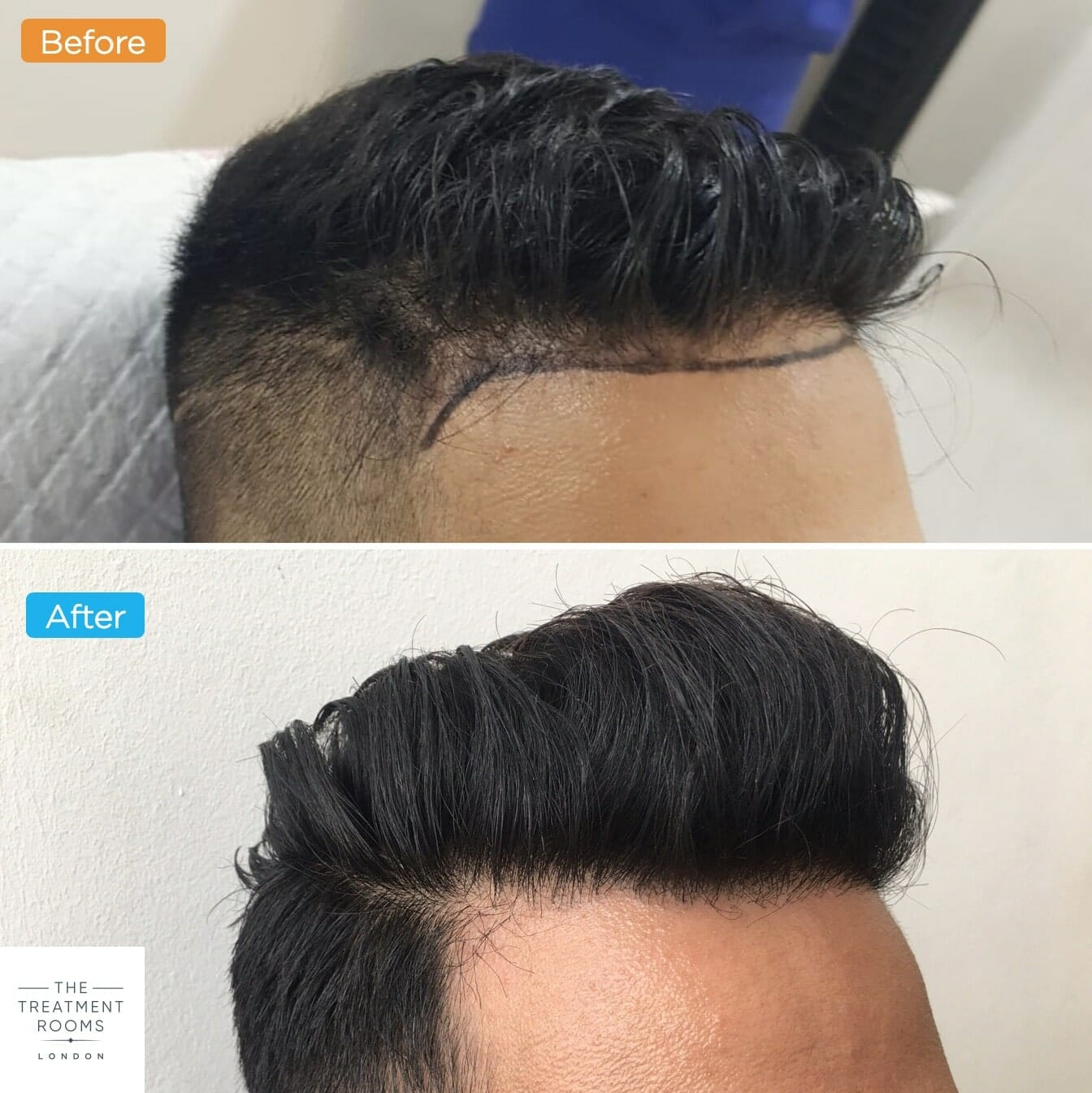 FUE hair transplant right temporal hairline