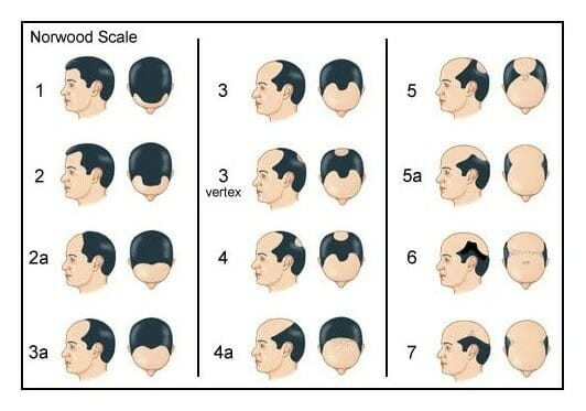 receding hairline norwood scale
